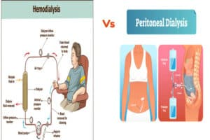 peritoneal dialysis vs hemodialysis steps