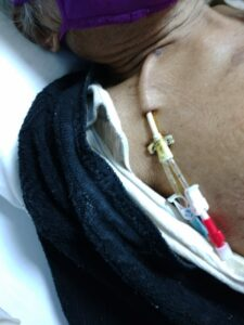 permcath inserted through the chest into jugular vein