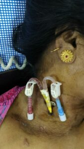 temporary catheter placed in the jugular vein in the neck